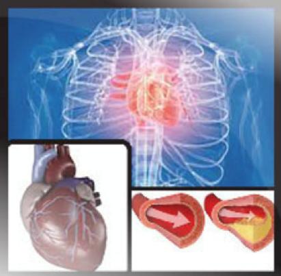 cardio_disorder