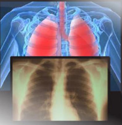respiratory_disorder